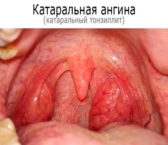 Как выглядит катаральная ангина - фото
