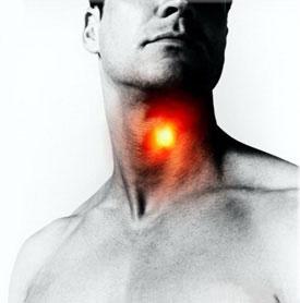 Фарингит - причины, симптомы, диагностика и лечение