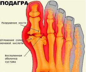 Подагра. Симптомы, причины, профилактика и лечение подагры