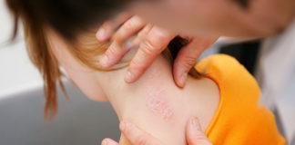 Псориаз - причины, симптомы, фото, виды и лечение псориаза