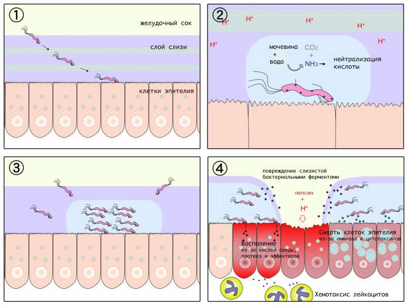 Бактерия Helicobacter pylori в желудке и двенадцатиперстной кишке