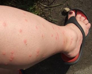 Покусанная комарами нога