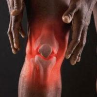 Артрит— симптомы, причины, виды и лечение артрита