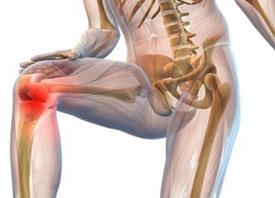 Виды артрита (классификация артрита)