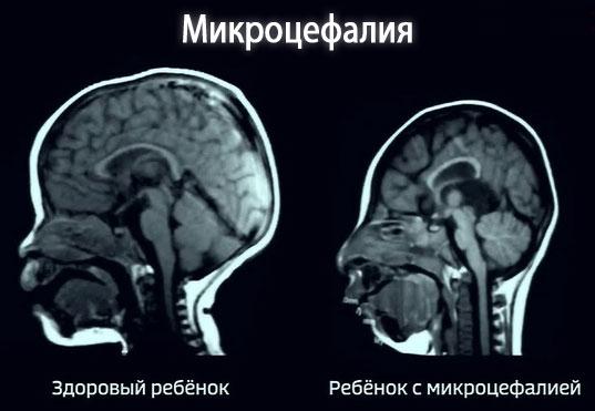 Симптомы микроцефалии