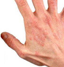 Аллергический дерматит. Дерматит фото