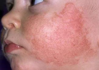 Атопический дерматит (устар. Диффузный нейродермит). Дерматит фото