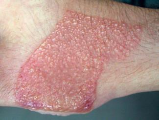 Контактный дерматит (устар. Простой дерматит). Дерматит фото