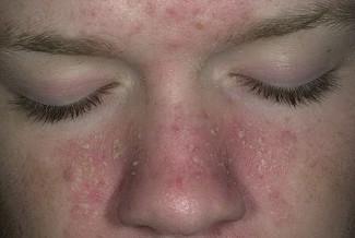 Себорейный дерматит. Дерматит фото
