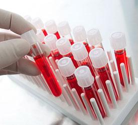 Биохимический анализ крови. Расшифровка и нормальные показатели