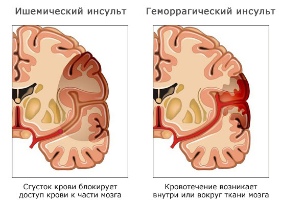 Виды инсульта: ишемический инсульт (инфаркт мозга) и геморрагический инсульт (внутримозговая гематома)