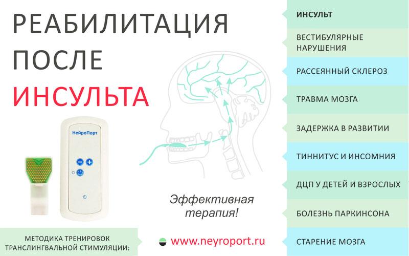 Нейропорт – это прибор, воздействующий через язык напрямую на нервную систему