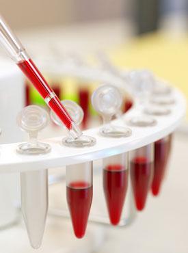 Общий анализ крови. Расшифровка и нормальные показатели