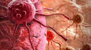 Злокачественная опухоль (Рак)— причины, симптомы, виды и лечение рака
