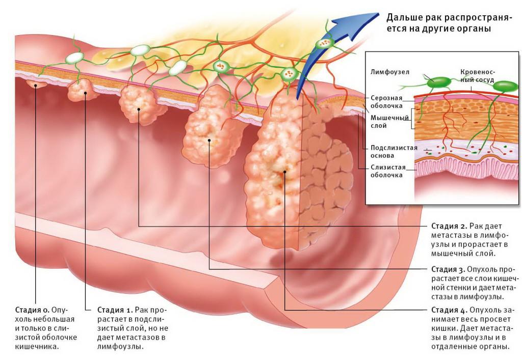 Стадии развития опухоли в организме