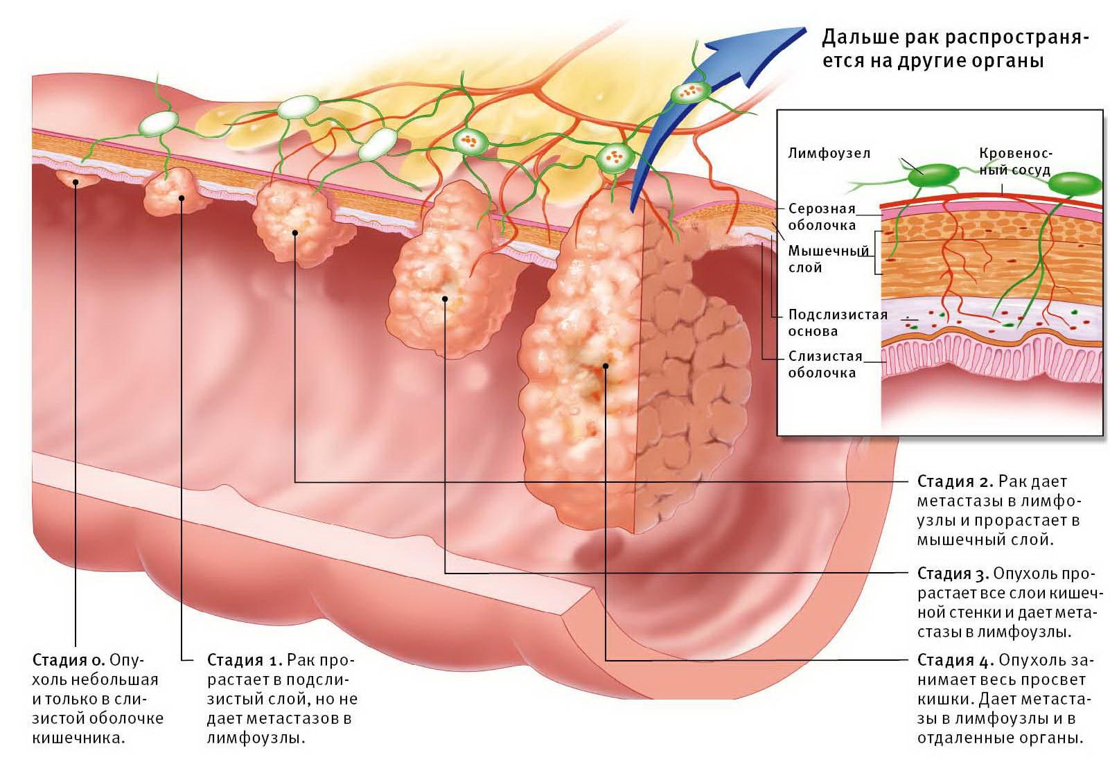 определение рака и его лечение
