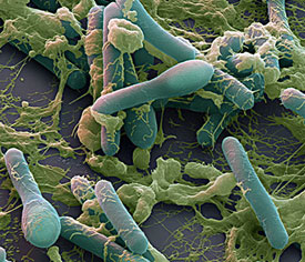 Clostridium botulinum (клостридия ботулизма, ботулина, палочка ботулизма)