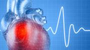Аритмия. Причины, симптомы, виды и лечение аритмии