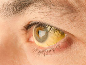 Симптомы гепатита А (болезни Боткина)