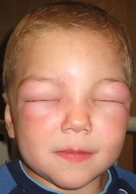 Анафилактический шок. Симптомы, причины, неотложная помощь и лечение