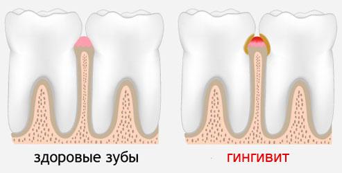 Гингивит (лат. Gingivitis) – заболевание десен, характеризующееся их воспалением - покраснением, отеком и кровоточивостью.