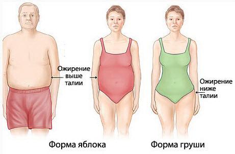 Виды ожирения по внешнему виду