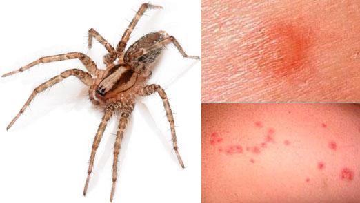 Как выглядит укус паука? Укус «Домашнего паука». Фото