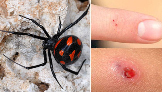 Как выглядит укус паука? Укус паука «Каракурт» (Черная вдова). Фото