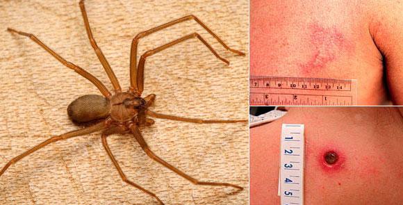 Как выглядит укус паука? Укус «паука-отшельника». Фото