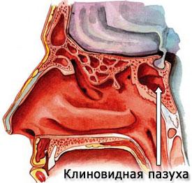 Клиновидная пазуха (синус)