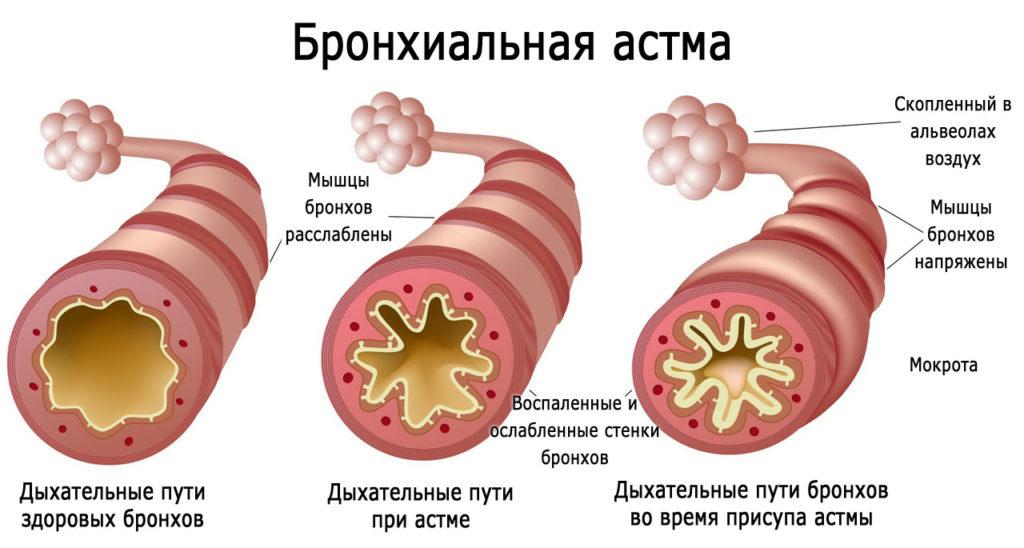 Нормальные бронхи, и бронхи при бронхиальной астме