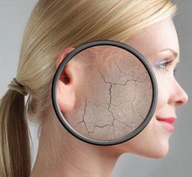Ксероз кожи (ксеродермия). Причины, симптомы и лечение ксероза кожи