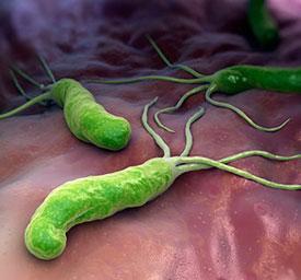 Причины двенадцатиперстной кишки. Бактерия Helicobacter pylori