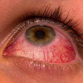 Гиперемия глаз (конъюнктивы)