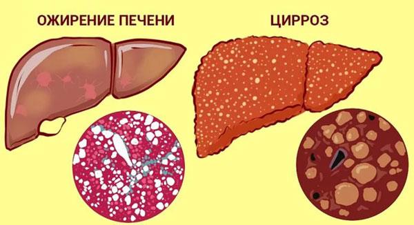 Ожирение печени и цирроз печени