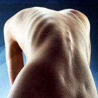 Сколиоз – симптомы, степени, причины, виды и лечение сколиоза