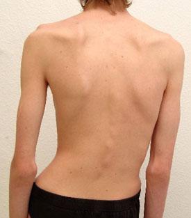 Симптомы сколиоза