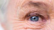 Глаукома – симптомы, причины, виды, лечение и профилактика глаукомы