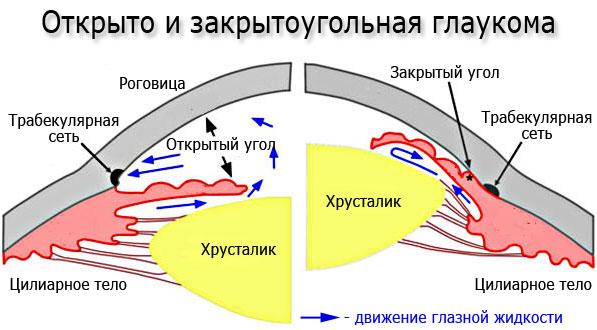 Виды глаукомы - открытоугольная и закрытоугольная глаукома