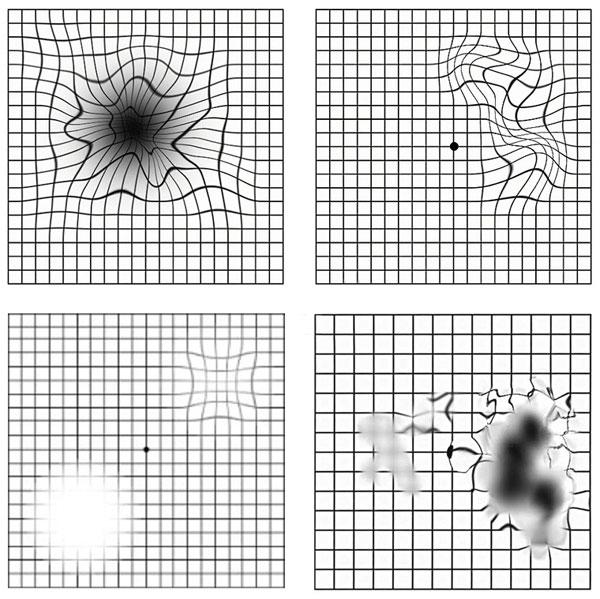 Тест Амслера - нарушения в центральной части сетчатки глаза, макулодистрофия