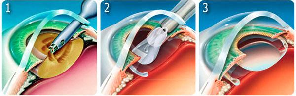 Хирургическое лечение катаракты: Факоэмульсификация - установка интраокулярной линзы (ИОЛ)