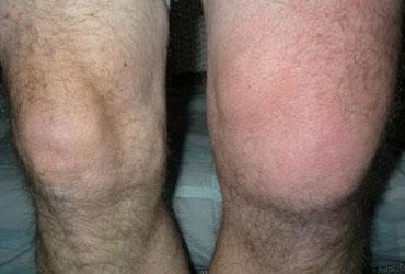 Симптомы синовита - синовит колена