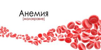Анемия – симптомы, причины, виды, лечение и профилактика анемии