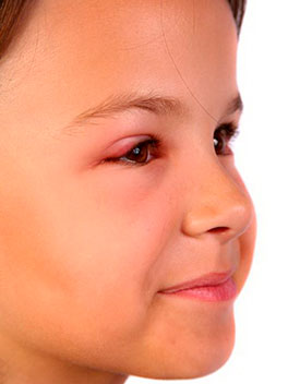 На глазу появился ячмень как лечить