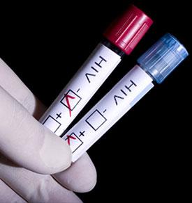 Развитие ВИЧ-инфекции (стадии ВИЧ))