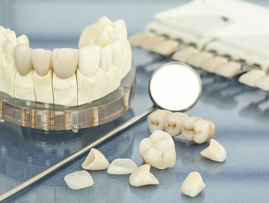 Возможности современной стоматологии - виниры, люминиры, элайнеры