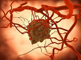 Виды и формы васкулита - геморрагический, уртикарный, аллергический и другие