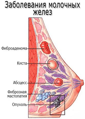 Заболевания молочных желез - мастопатия, кисты, фиброаденома