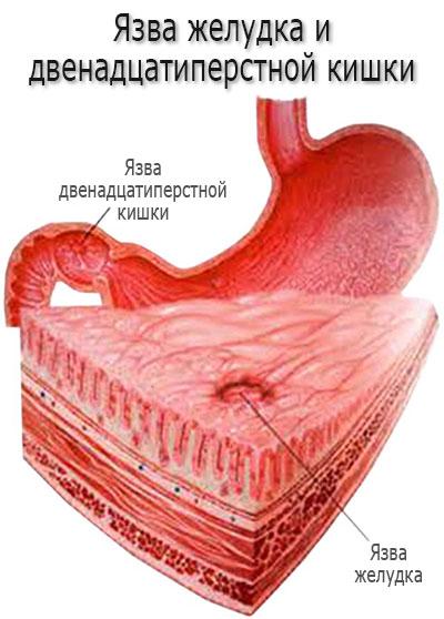 Язва желудка или двенадцатиперстной кишки