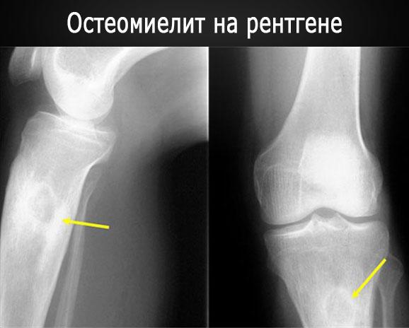 Остеомиелит - фото (воспалительный процесс на рентгене)
